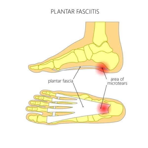 Illustration plantarfascian och det smärtande området (rött) som uppkommer om belastningen blir för stor.