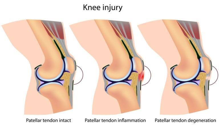 Bild vänster friskt knä. Mittenbilden hopparknä. Högra bilden ruptur av quadricepssenan.